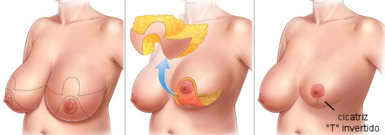 cirurgia-reducao-mama
